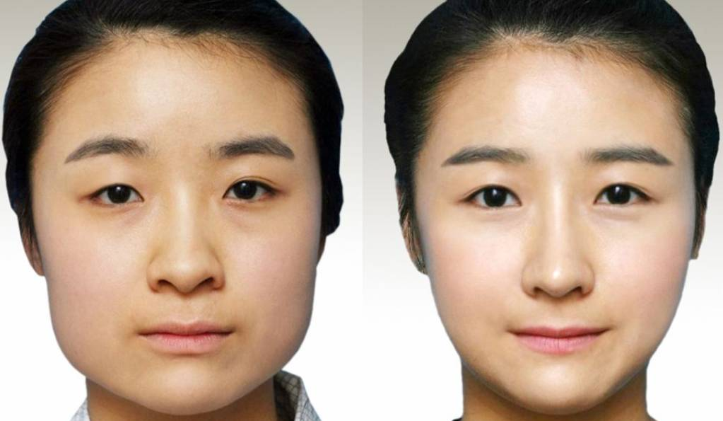 改变圆脸做下颌角整形 如何通过发型和妆容修饰上镜小V脸?