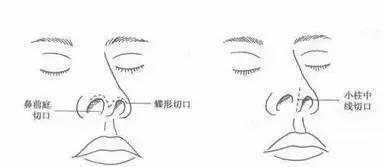 整形|隆鼻10年后假体一定要取出吗?