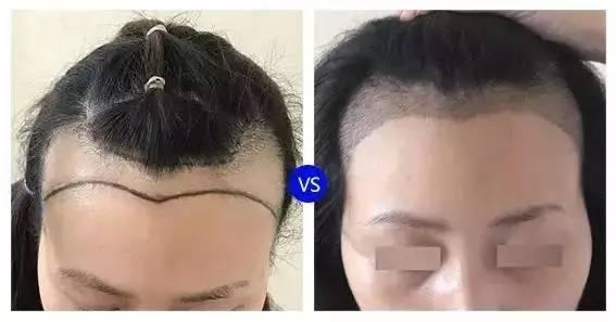 般医院能检测毛囊吗,烦烦烦!总是掉头发,到处都是头发,再这样下去都快成秃子了……该怎么拯救我们的脱发困扰?
