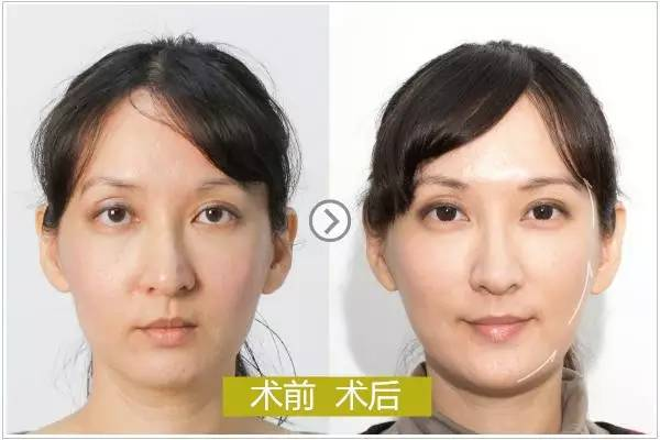 纳米脂肪换颜术|你的46岁,是否也能活成她这个样子?