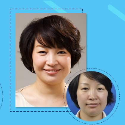 注射微整形专家|6月9日中国台湾抗衰专家吕睿紘博士线雕+玻尿酸专场,还你不老的脸!