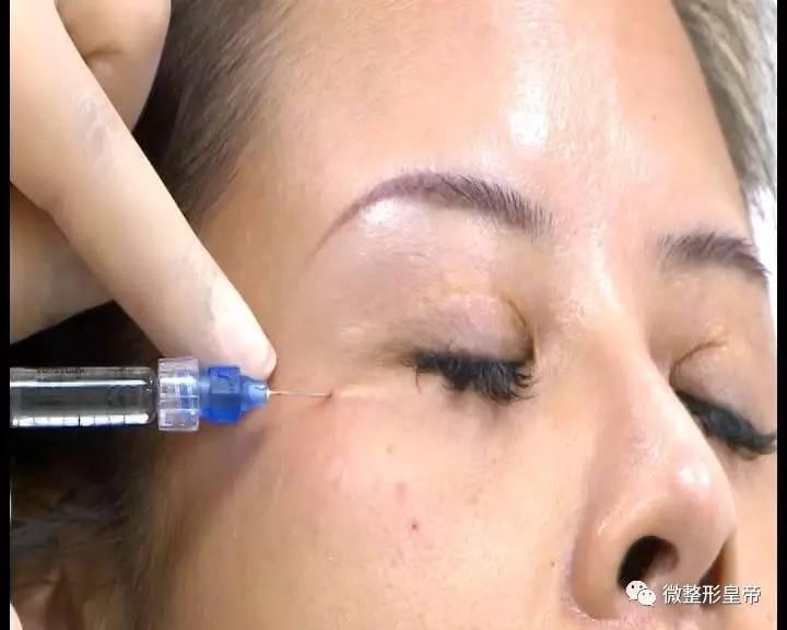 下眼睑凹陷可以填充吗?
