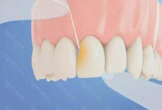 最易形成蛀牙