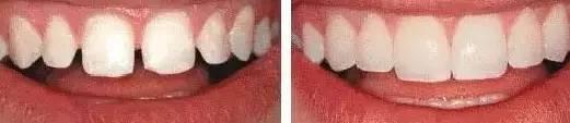 """牙齿需要矫正吗 """"我这口烂牙到底要不要矫正?""""不矫正留给谁看?"""