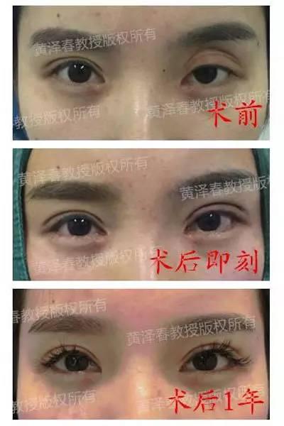 双眼皮修复权威的医生|6月26日—27日,黄泽春教授亲临台州维多利亚!为你塑造魅力双眸!