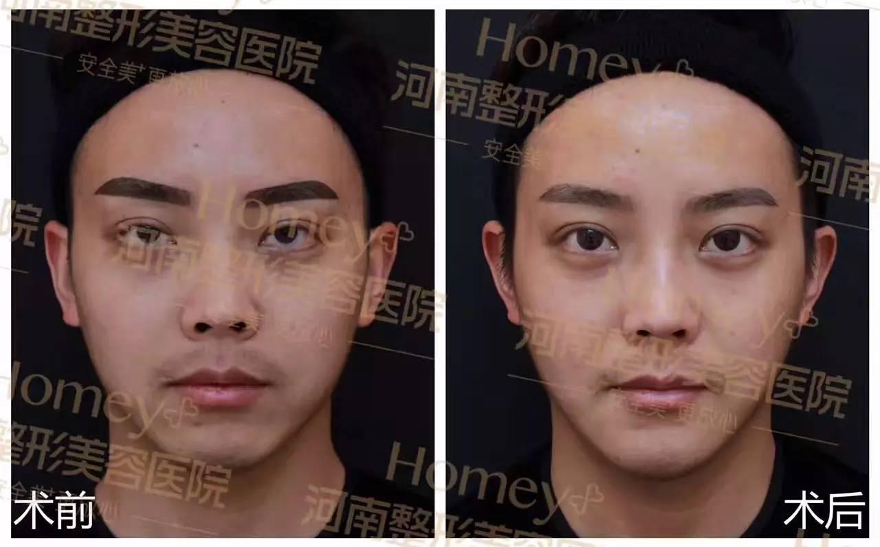 纳米脂肪填充长期的吗 立体小脸三件套,get精致脸型