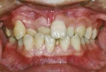 牙齿排列不齐