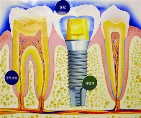 种植牙是什么 牙痛要命,6月到华美约大师「免费」植牙!