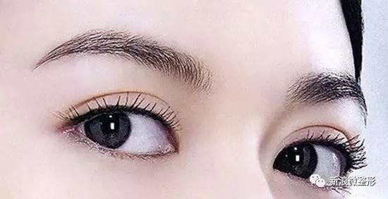 埋线双眼皮手术前护理注意事项是什么?