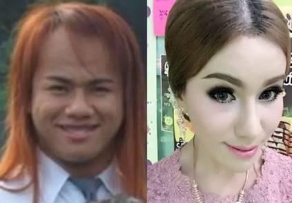 32岁泰国丑女整容逆袭嫁21岁小鲜肉帅哥