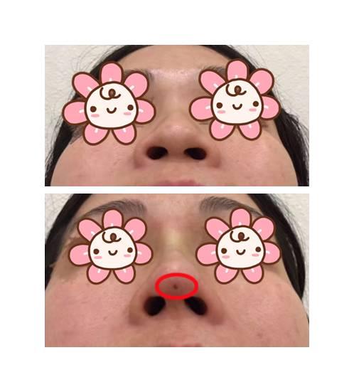 线雕隆鼻有什么优点|林允这种塌鼻子不用动刀也能变得很美?!