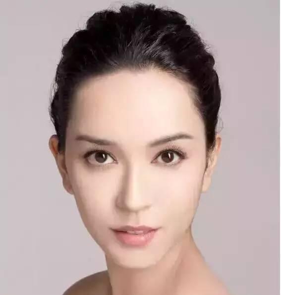 整形案例对比:双眼皮+隆鼻,改变面部五官的良好组合