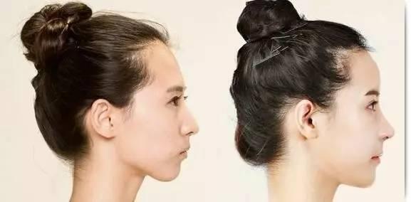 桃心脸是什么 招桃花、旺事业、增颜值、减年龄!京都微整专家为你私人订制一张桃心脸!