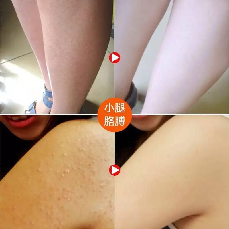 毛周角化用果酸换肤|有鸡皮肤的你,羡慕光滑的肌肤吗