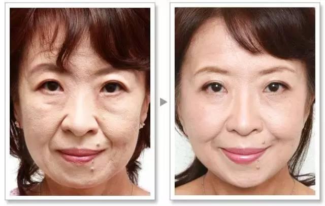 面部无创提升|林志玲告诉你:年龄大不是问题,你看起来老才是!