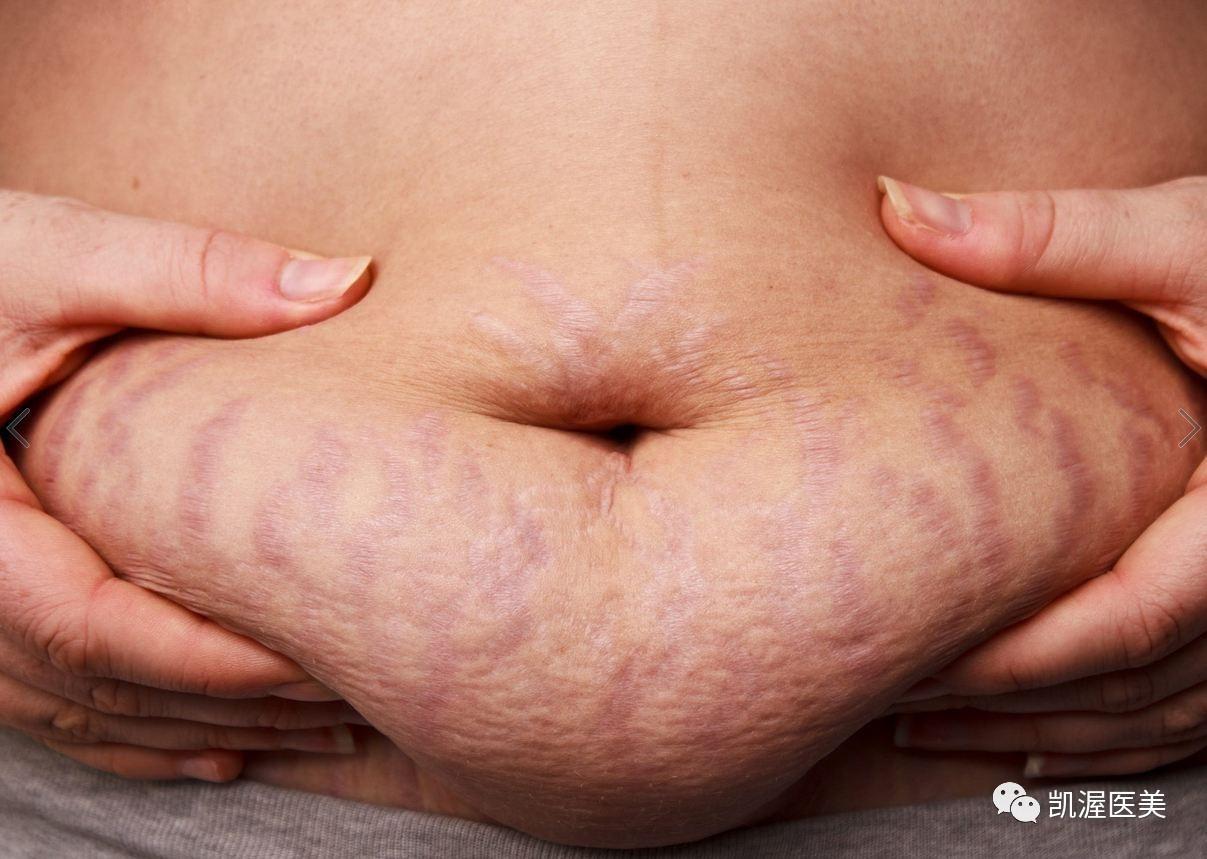 优立塑吸脂医院好吗|漂亮衣服穿不下,都是脂肪惹的祸!