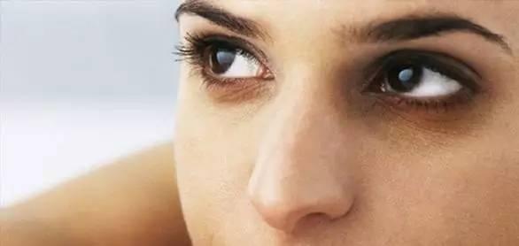 黑眼圈的形成原因 不要以为黑眼圈只是因为熬夜,也有可能患了这几种病!