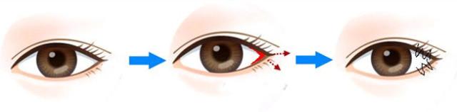 快来看看,你适合哪种双眼皮手术?!