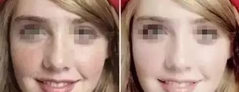 黄褐斑是写在女人脸上的病!皮秒不到1秒还原肌肤本色