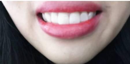 牙齿太黄怎么办?教你一招,两分钟让牙齿变白!