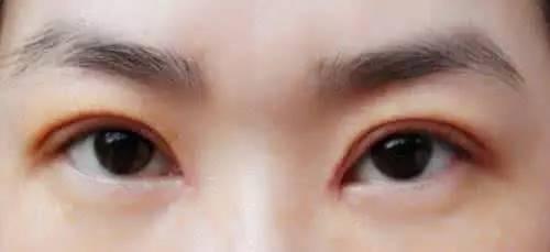 别让双眼皮修复再成伤害,你可以这样!