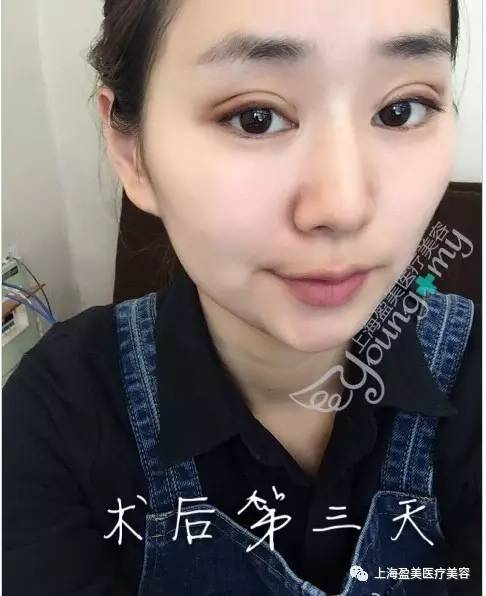 近视眼可以做双眼皮手术吗?