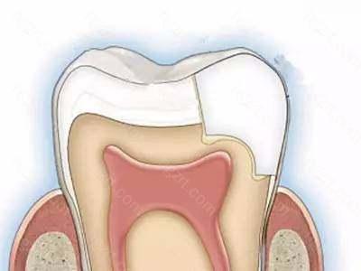 你的牙齿就敏感了