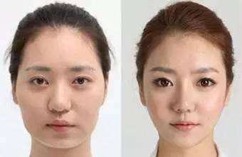 面部脂肪怎么办,打瘦脸or面部吸脂,哪个可变小V脸~!