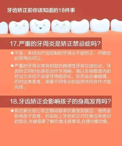 牙齿矫正怎么做|你与变美只隔着一个牙套的距离!牙齿矫正前你该知道的18件事