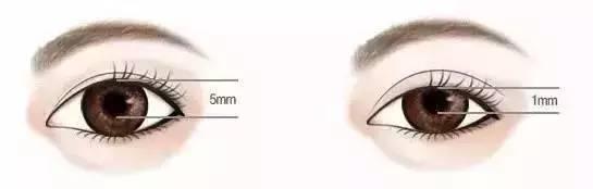 做双眼皮多久能恢复 现在做个双眼皮,开学以后当校花!