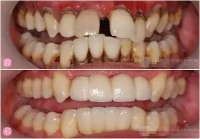 牙齿畸形不矫正会怎样?哎。。你太小看它了,它其实很可怕的