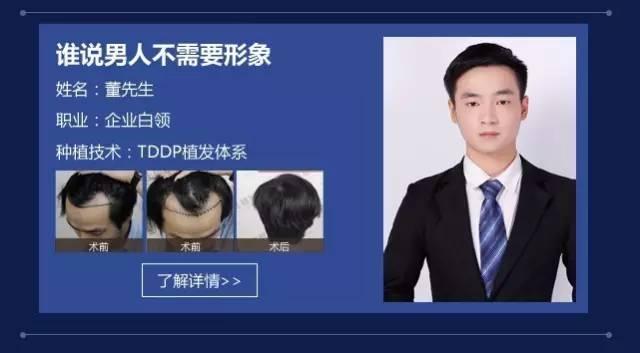 植发后多久能长出新的头发呢?