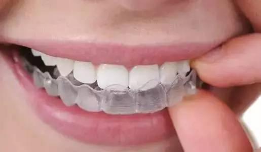 牙齿矫正会反弹啊?