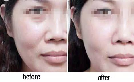 面部线雕能除去法令纹吗?