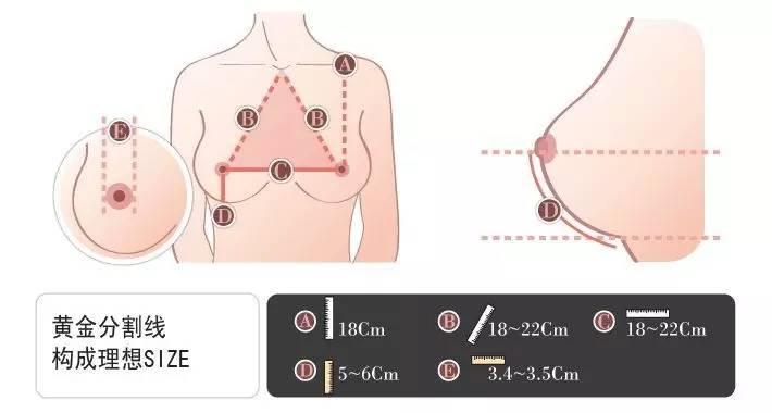 假体隆胸会下垂吗?