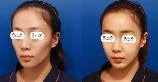 什么是面部脂肪填充?