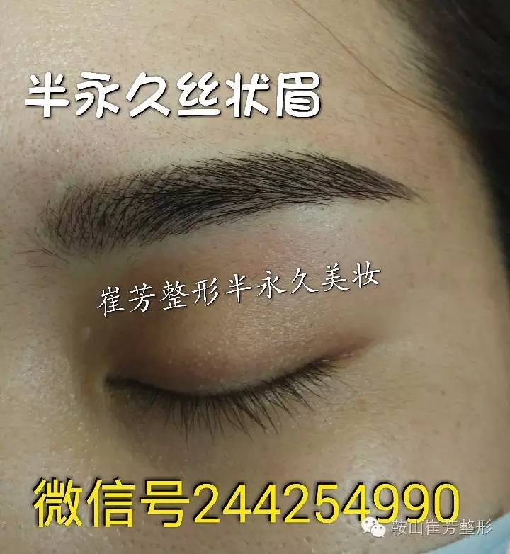 韩式半长期纹眉多久恢复自然?