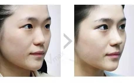 双眼皮效果出来自然吗?