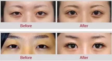 眼部综合手术都包括什么啊?