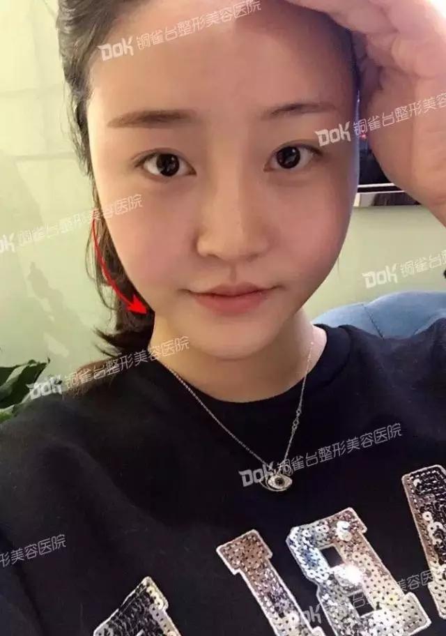 韩式半长期纹眉疼不疼?