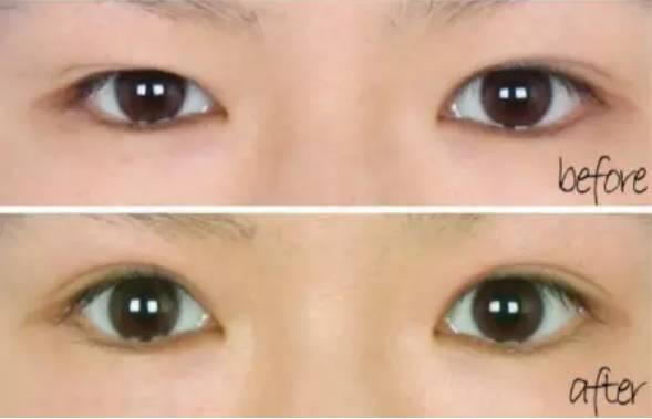 为什么喜欢双眼皮 为什么那么多人要去做双眼皮,真相直戳心窝!