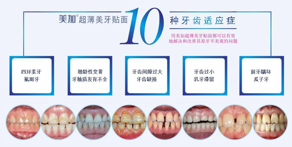 冷光美白牙齿会使牙齿变得敏感吗?