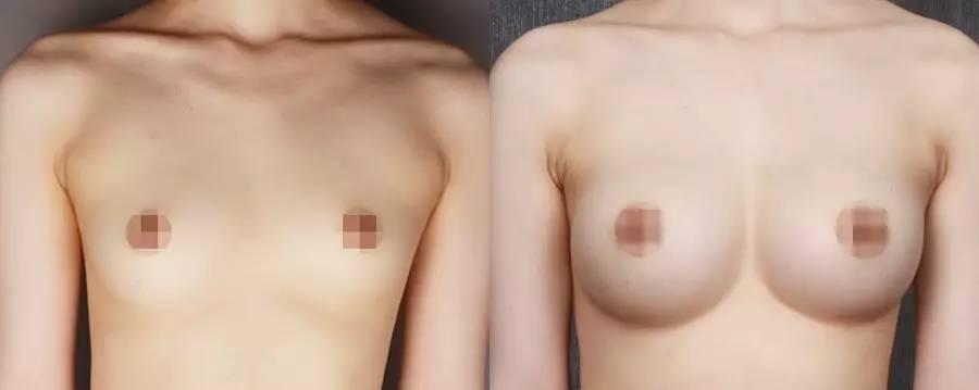 8月12日胸部整形大咖,面部精雕专家—邵文辉教授莅临大华亲诊