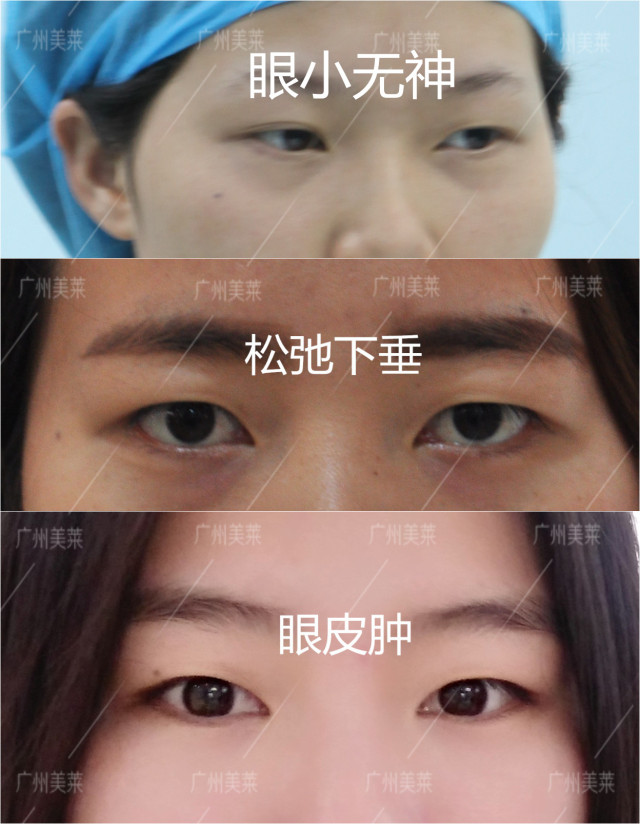 眼皮松弛下垂怎么办 杨洋当场哭了,电影遭强制下架还被一顿黑?!