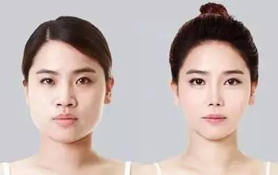 瘦脸针效果好不好?
