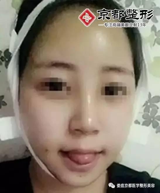 面部脂肪填充多久可以消肿?