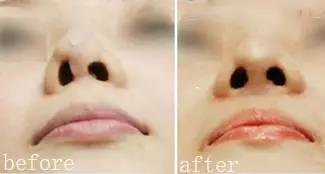 什么是鼻修复?