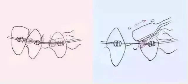 牙齿矫正后该怎么刷牙呢?