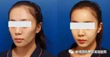 面部心型填充技术是什么?