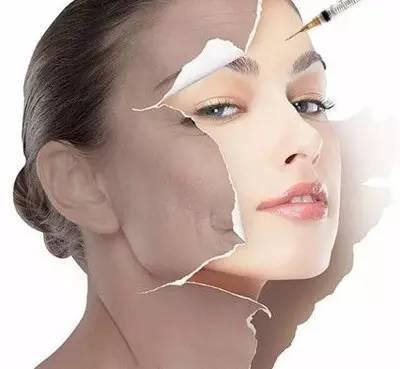 微整如何去除眼部细纹,两种最有效的方法